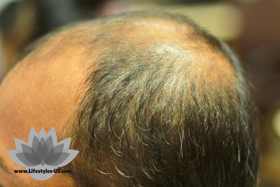 Ayurvedic remedies for hair fall are abundant in nature